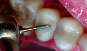Шлифование зубов