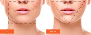 Нижняя часть лица до процедуры Dental Face Lifting и после