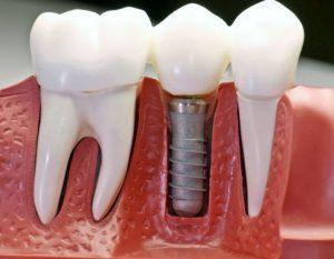 Имплантация зубов: стоимость в Днепре