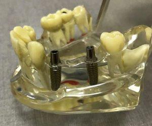 Вставить имплантанты зубов в Днепре