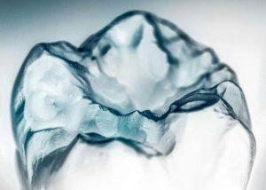 Высокоэстетичная реставрация зубов