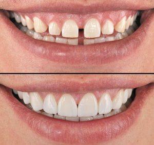 Виниры для облицовки зуба