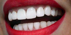 Отбеливание зубов в Днепре